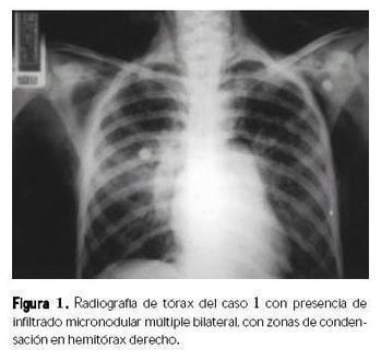 Boletín médico del Hospital Infantil de México - Reporte de cinco casos pediátricos de histoplasmosis diseminada | HISTOPLASMA CAPSULATUM | Scoop.it