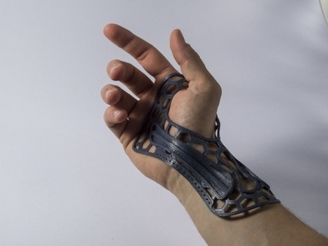 3ders.org - LAB+ shares designs for 3D printed, thermoformed wrist brace | 3D Printer News & 3D Printing News | shubush digital | Scoop.it