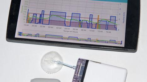Besançon : un pancréas artificiel qui pourrait changer la vie des diabétiques | Infos et Actualiltés de la Pharmacie Française | Scoop.it