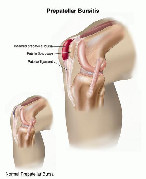 Flexoprin-Bursitis Pain Reliever | Joints Supplement | Flexoprin-Get relief from joint pain | Scoop.it