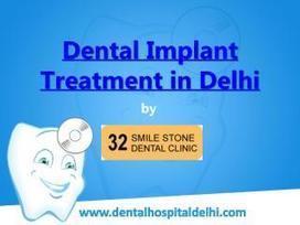 Dental Implant Treatment in Delhi | Dental Clinic in New Delhi | Scoop.it