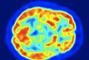 Scientists Create Artificial Brain With 2.3 Million Simulated Neurons | Longevity science | Scoop.it