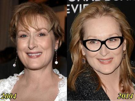 Meryl Streep Plastic Surgery Before and After Pictures | Plastic Surgery | Scoop.it