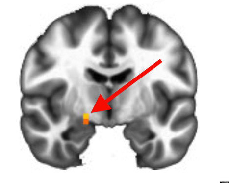 Brain Scans Can Predict Political Ideology, Study Shows | RAGE UNIVERSITY | Scoop.it