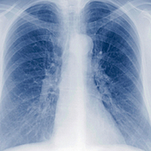 Bronchitis Symptoms, Causes And Risk Factors From SymptomFind.com | brooks compisite high school biology 20 GH | Scoop.it