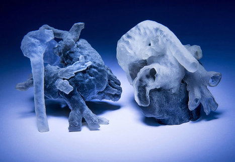 High Quality 3D Printed Model Hearts Printed Within Hours of MRI Scans | Usal - MediNews | Scoop.it