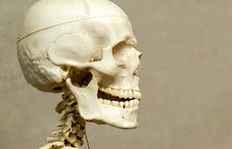 Utah company gets OK to produce jaw prosthesis - Deseret News | Medical applications for 3D Printing | Scoop.it