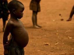Symptoms of malnutrition | SteadyHealth.com | Human Body Systems | Scoop.it
