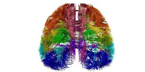 Maladies du cerveau : 1 personne sur 3 sera un jour concernée | Think outside the Box | Scoop.it