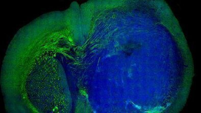 Laser-surgery gets edge on cancer   Neurobiology and Psychology   Scoop.it