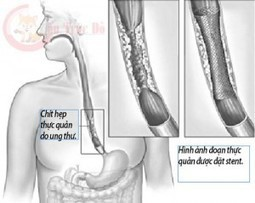 Fucoidan chữa ung thư thực quản   Thuc pham dinh duong   Scoop.it