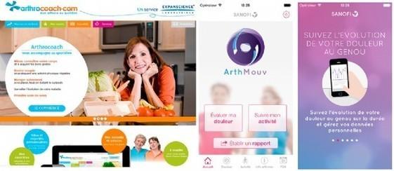Arthrose : les outils numériques au service de la médecine.