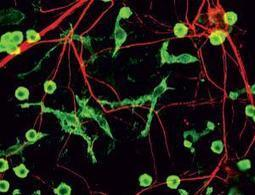 Immune cells gobble up healthy but idle brain cells | A Sense of the Ridiculous | Scoop.it