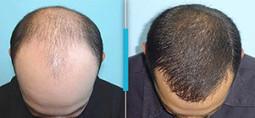 Hair Transplant Surgery Nottingham | Your Derma | Scoop.it