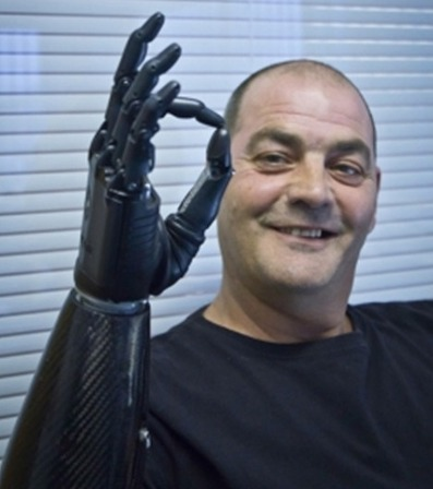 RSLSteeper launches third version of its bebionic myoelectric hand | Longevity science | Scoop.it