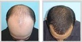 Cost of Hair Transplant in India & Hair Surgery Cost Kolkata | Business Services | Scoop.it