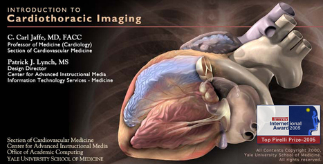 Yale: Introduction to Cardiothoracic Imaging | Medic e-learning Case 4 (Chest Pain) | Scoop.it