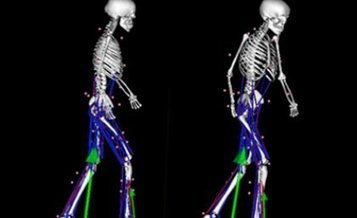 Computer models help cerebral palsy patients step out | Cerebral Palsy News | Scoop.it