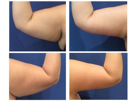 Arm Lift Facts You Should Know | Body Contouring | cosmetic surgery | Scoop.it