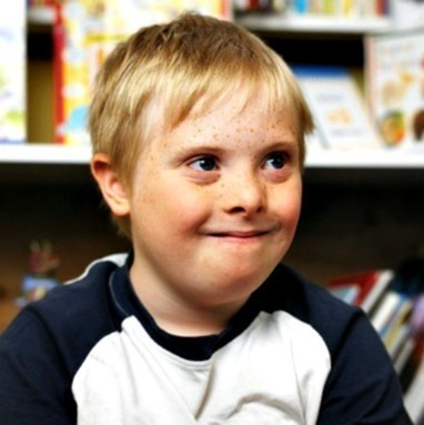 Study Urges Education About Down Syndrome to Further Acceptance | Otherwise able | Scoop.it