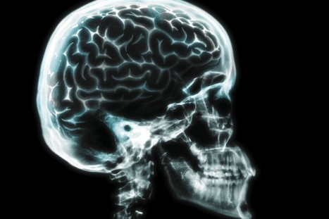 The Neuroscience of Near-Death Experiences | enjoy yourself | Scoop.it