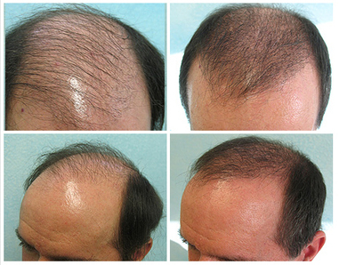 Retrieve your Confidence back by Hair Transplant Treatment   Royal Cosmetic Surgery   Scoop.it