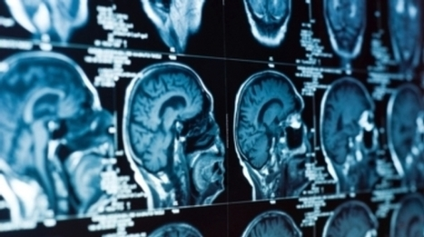 After Another Statistical Speed Bump, Is the #Science of #fMRI Learning from Its Mistakes? #neurology #medicine | Limitless learning Universe | Scoop.it