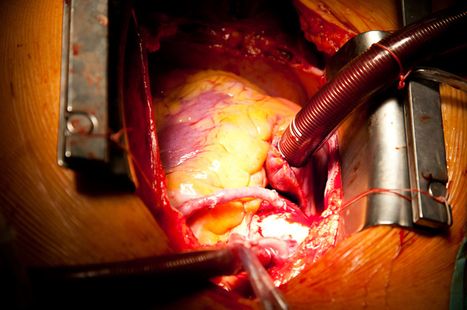 Open Heart Surgery - Hospitals and Specialists in Thailand   Health Medical Beauty Fitness   Scoop.it