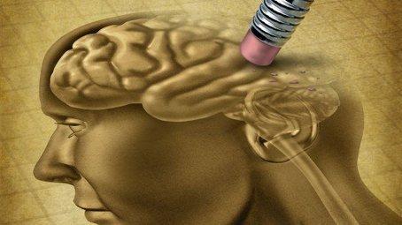 Alzheimer, una pillola può rallentare la malattia | Mondo Alzheimer | Scoop.it