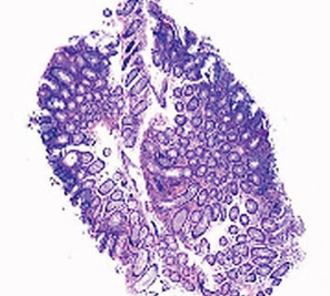 Fecal Occult Blood Screening Increases High-Risk Polyp Detection   Medical biology science news   Scoop.it