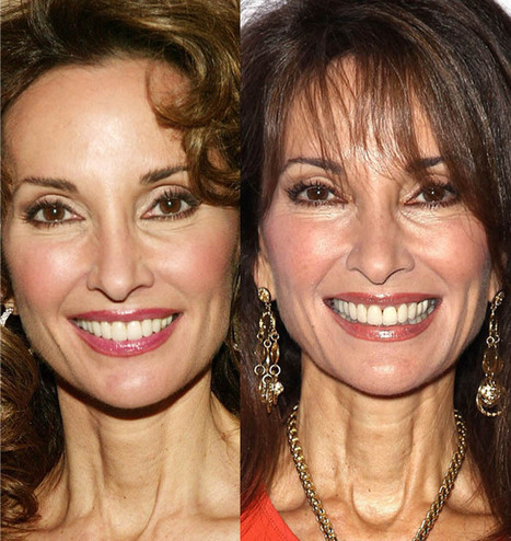 Susan Lucci Looks Fabulous at 67! Plastic Surgery on Face & Breast! | Celebrity Plastic Surgery | Scoop.it