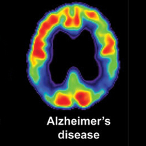 Finding Alzheimer's disease before symptoms start - The Almagest | Neuropsychology | Scoop.it