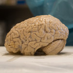 Brain Disease Is Found in Veterans Exposed to Bombs-New York Times | Learning, Brain & Cognitive Fitness | Scoop.it