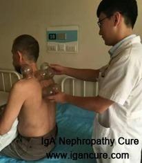 Do You Get Sinus Problems with IgA Nephritis_IGA Cure   igancure.com   Scoop.it