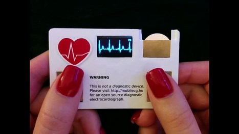 MobilECG, la tarjeta de visita capaz de hacer un electrocardiograma - Ubergizmo ES | Ingeniería Biomédica | Scoop.it