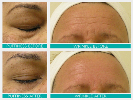 HydraFacial MD | Resurfacing and Skincare Treatment Chennai | Spring MED Spa | Scoop.it