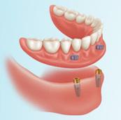 Lower Implants - Glasgow Denture Studio   Glasgow Denture Studio   Scoop.it