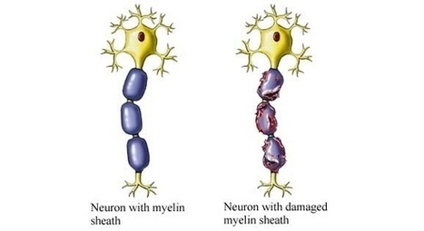 Cure For Multiple Sclerosis? Treatment Wildly Popular Despite Scant Evidence It Works | Longevity science | Scoop.it