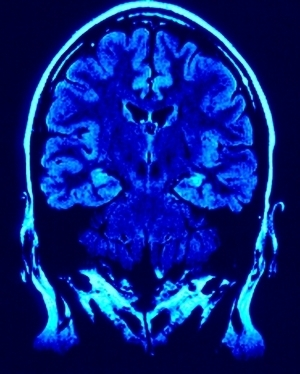 50 Brain Facts Every Educator Should Know | Associate Degree - Facts and Information | Brain and Management | Scoop.it