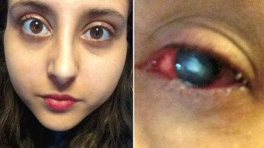 Angleterre - Une semaine éveillée pour tuer le parasite dans son oeil | Hebe | Scoop.it