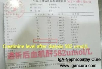 Do I Have to Do Dialysis in All My Life_IGA Cure   igancure.com   Scoop.it