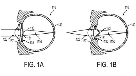 Google files patent for implantable electronic eye device | Eye Hope | Scoop.it