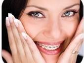 3 loại niềng răng phổ biến nhất | Nha khoa Đại Việt. | Thông tin y khoa | Scoop.it