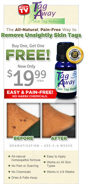 Skin Tag Away – Best Online Offer for Tag Away | As Seen on TV | Scoop.it