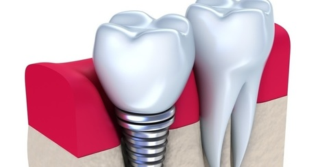 Dental implants and how to get them right | Tee And Putt | Scoop.it