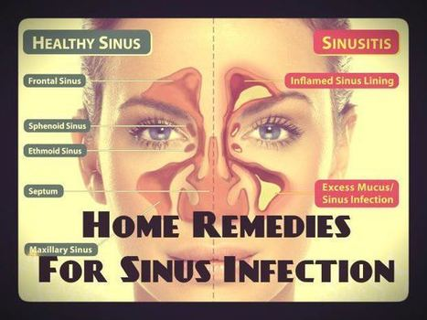 """10 Natural And Herbal Remedies For Sinusitis!"" 