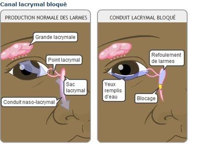 Trajet d'une Larme - Les larmes | Glandes Lacrymales | Scoop.it