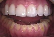 Porcelain Veneers Can Restore Teeth Damaged by GERD | Dentistry at Scoop.it! | Scoop.it