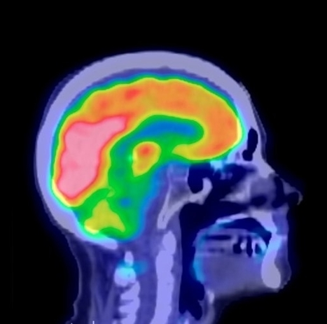 Descubrimiento cambiaría por completo las teorías anteriores acerca de cómo funciona el cerebro. Roslin Institute. | Cosas que interesan...a cualquier edad. | Scoop.it