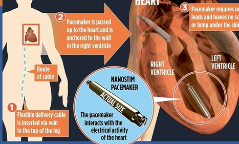 AAA pacemaker the size of a small battery that can be fit in 7 minutes | Cardiology | Scoop.it